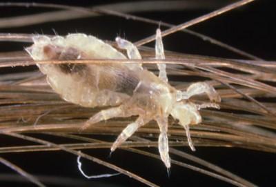 к чему снятся паразиты в теле человека