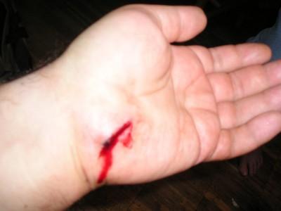хорошей эластичности, ребенку отрезали руку сонник термобелья